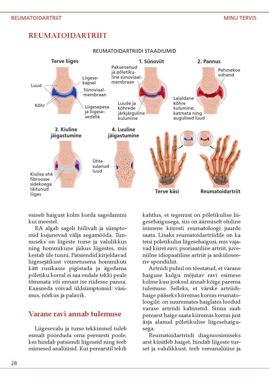 liigeste haruldased haigused tabletid valu leevendamiseks liigestes