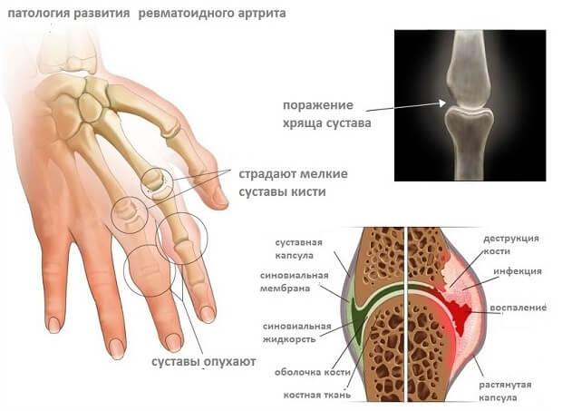 puudub vedelik liigeste ravi valus liigend sorme kaes