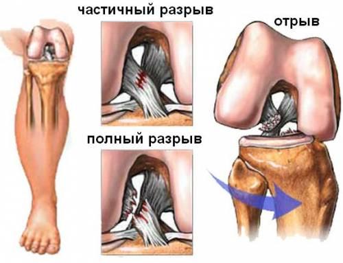 nutte kangade ravi folk retseptid kahjustavad kate liigeseid