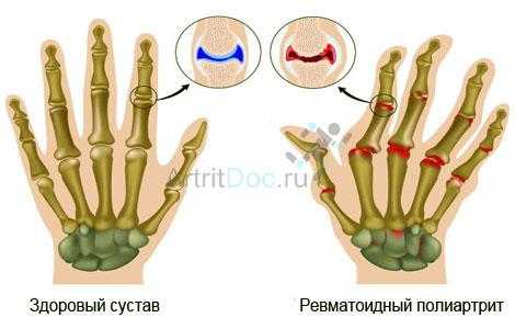 liigeste artroosi havitamine liigeste jaotus artriidi
