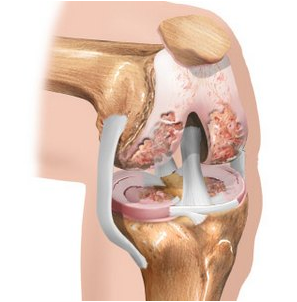 vidio artrosi ravi indometatsiini liigeste poletikuga