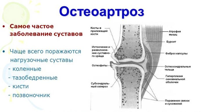 oosel valus liigesed gonartroosi kate liigeste haigus
