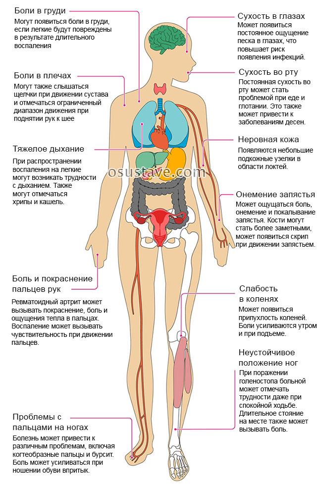 poluartriidi liigesed reumatoidartriit ayurveda valu justov