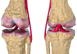 polveliigese turse artroos pluss lumi tasakaalustatud liigesed poletik