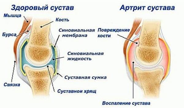 salvigeeli liigesevalu leevendamiseks puha polve artriit