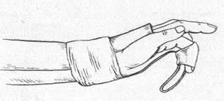sorme tootlemise liigese dislokatsioon