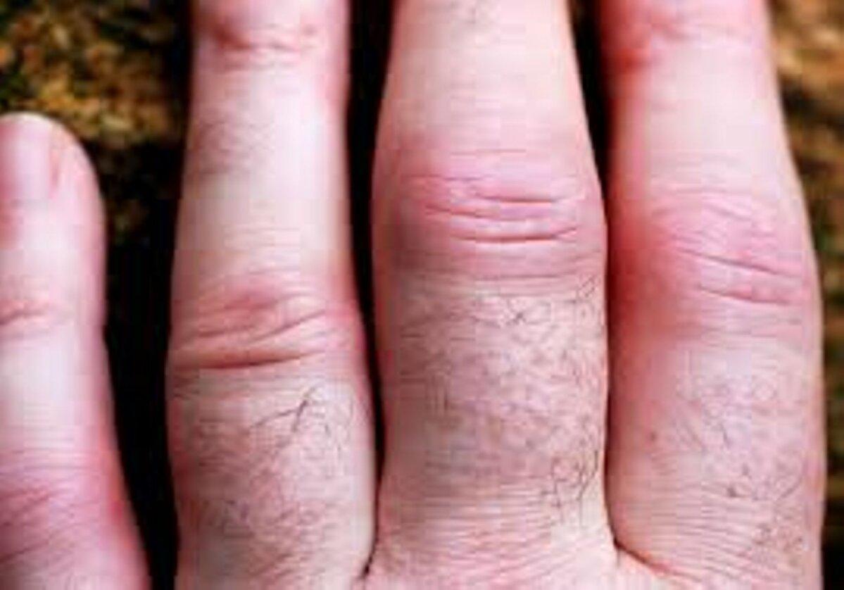 sormed parast artriiti