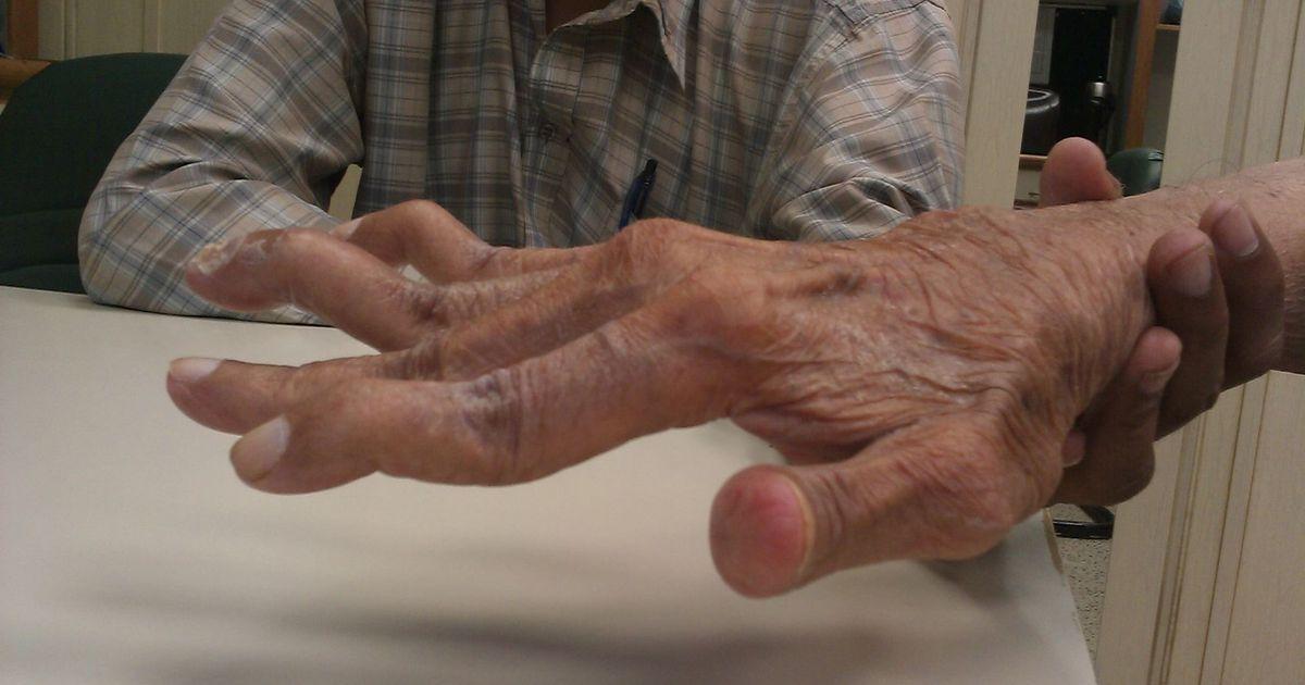 salvi kate liigeste valu eemaldamiseks kimbud valus liigesed