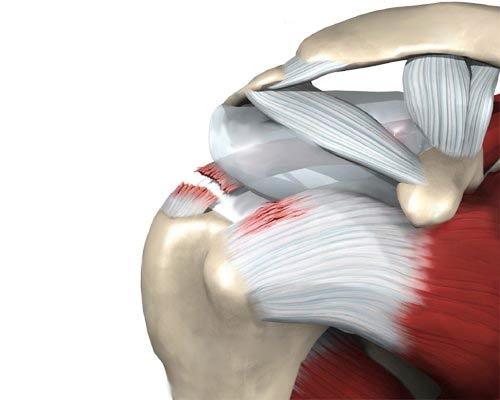 liigeste artroosi harja kaed romit toetab kasitsi ravi