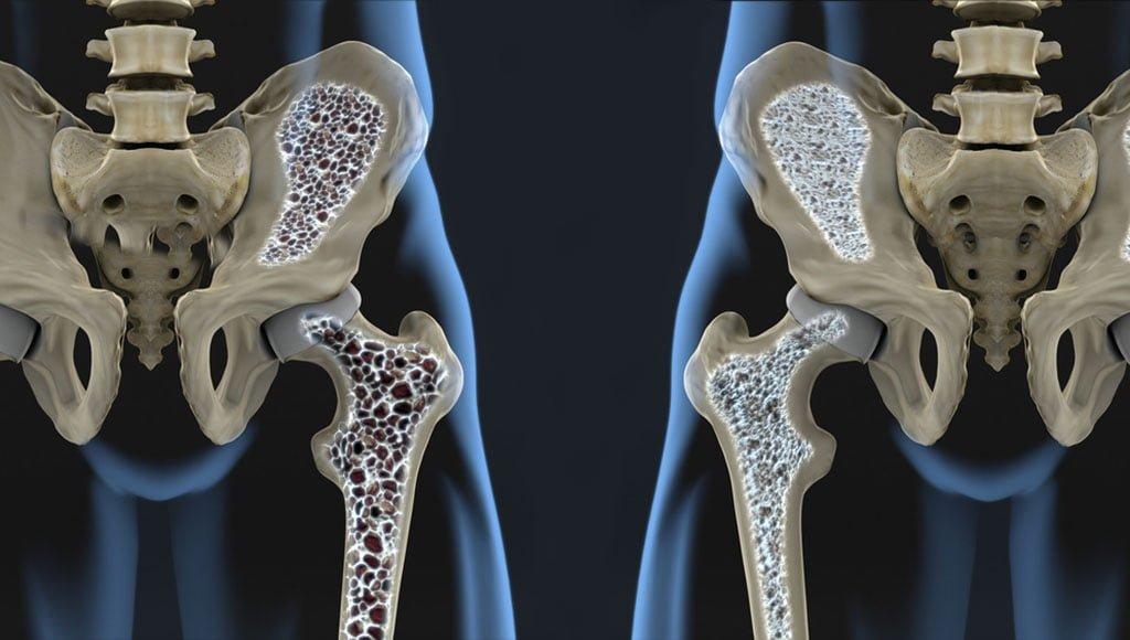 lihaselaarne valu kuunarnukis laiendamisel valu harja liigese