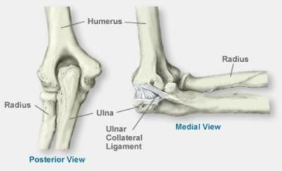 uhine salvi millisel arthroosi etapis muutub liigese