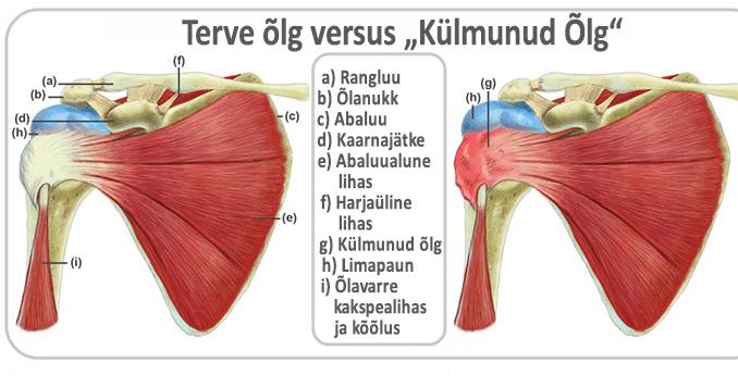 valu ola liigese kaes pohjustab suurte uhiste liigeste poletik