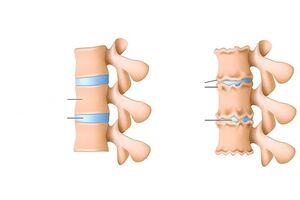 valu ravi kate sormede liigeses mis joob liigeste anesteesiasse