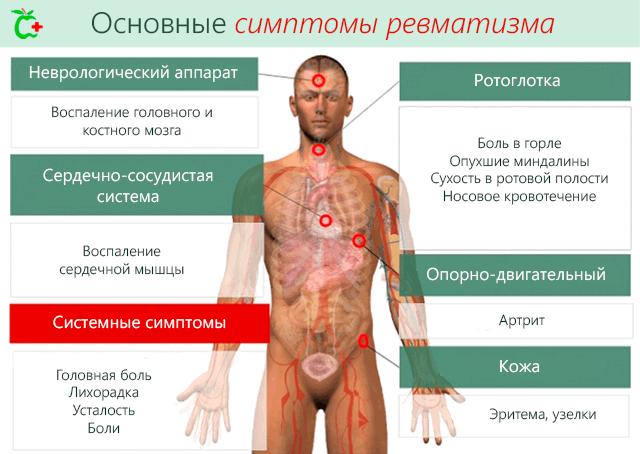 valus liigesed ja norkus uhishaigus parast anesteesiat