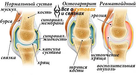 salv artroosi ravis sumptomid on haiged polved