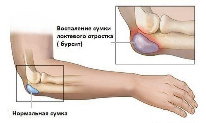 valus ola ja kuunarnuki liigesed pohjustavad ravi mis on toodeldud poletikuliste liigestega
